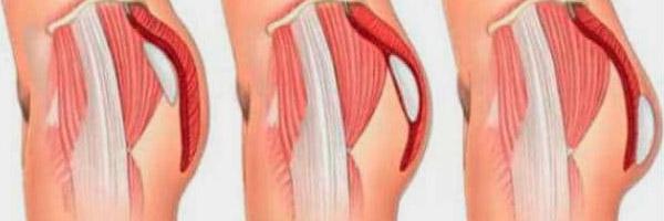 Gluteoplastia con Implantes